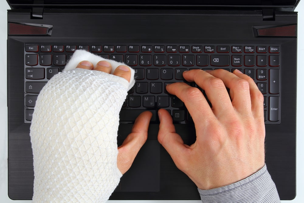 Left hand in a cast while typing on a keyboard